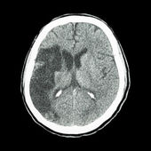 CT brain : show Ischemic stroke (hypodensity at right frontal-pa — Stock Photo