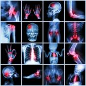 Collection X-ray multiple part of human and Arthritis,multiple disease (Gout , Rheumatoid,congenital heart disease,stroke) — Stock Photo