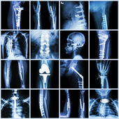 Collection X-ray orthopedic surgery (Multiple part of human, operate and internal fixation by plate&screw ) — Stock Photo