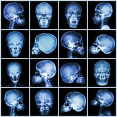 Collection x-ray skull (asian people) — Stock Photo