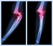 Fracture elbow (Left image : side position , Right image : front position) — Stock Photo