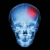 X-ray Skull of child and Stroke (cerebrovascular accident) — Stock Photo
