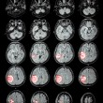 Постер, плакат: MRI brain : Brain tumor at right parietal lobe