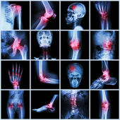 Collection human joint and arthritis and stroke — Stock Photo