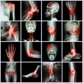 Collection human joint and arthritis and stroke — Foto de Stock