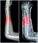 Fracture shaft of ulnar bone ( forearm bone )  : ( Left : pre-treatment  ,  Right : Psot-treatment (splint with cast) ) — Stock Photo