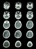 CT scan (computed tomography) of brain show cerebral infarction  — Foto Stock