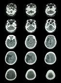 Ct scan mozku (počítačová tomografie) ukazují mozkový infarkt — Stock fotografie