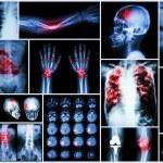 X-ray multiple disease (Stroke (cerebrovascular accident) : cva ,Pulmonary tuberculosis ,Bone fracture ,Shoulder dislocation ,Gout ,Rheumatoid arthritis ,Spondylosis ,Osteoarthritis ,Bowel obstruction — Stock Photo #63152595
