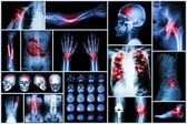X-ray multiple disease (Stroke (cerebrovascular accident) : cva ,Pulmonary tuberculosis ,Bone fracture ,Shoulder dislocation ,Gout ,Rheumatoid arthritis ,Spondylosis ,Osteoarthritis ,Bowel obstruction — Stock Photo