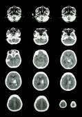 Hemorrhagic Stroke .  CT scan (computed tomography) of brain ( c — Foto de Stock