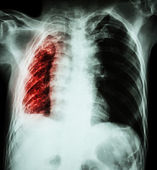 Pulmonary Tuberculosis .   Chest X-Ray : Right lung atelectasis  — Stock Photo