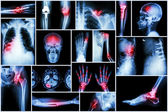 Collection X-ray multiple disease (stroke ,fracture ,osteoarthritis ,pneumonia ,tuberculosis ,spondylosis ,spondylolisthesis ,gout ,rheumatoid arthritis ,brain tumor ,orthopedic operation ,etc) — Stock Photo