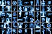 X-ray multiple part of adult and child and Disease ( Pulmonary tuberculosis Stroke kidney stone osteoarthritis bone fracture bowel obstruction spondylosis spondylolisthesis scoliosis brain tumor etc) — Stock Photo