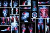 X-ray multiple disease ( stroke (CVA) , fracture , shoulder dislocation , bowel obstruction , rheumatoid arthritis , gout , osteoarthritis knee , orthopedic surgery , pulmonary tuberculosis (TB), etc) — Stock Photo
