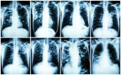 Pulmonary Tuberculosis Collection .  Chest X-ray : show patchy infiltration , interstitial infiltration , alveolar infiltration , cavity , fibrosis at lung due to Mycobacterium tuberculosis infection — Stock Photo