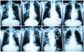 Pulmonary Tuberculosis Collection .  Chest X-ray : show patchy infiltration , interstitial infiltration , alveolar infiltration , cavity , fibrosis at lung due to Mycobacterium tuberculosis infection — Fotografia Stock