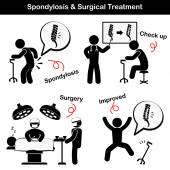 Spondylosis and Spondylolisthesis and Surgical Treatment Pictogram  ( Old man suffer to low back pain ( lumbar pain ) , He was checked up and operated , Spine was internal fixed by plate and screw ) — Stock Vector