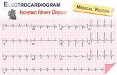Electrocardiogram ( ECG , EKG ) of Ischemic Heart Disease ( Myocardial Infarction ) and Anatomy of heart icon — Stock Vector