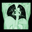 Lung cancer ( CT scan of chest and abdomen : show right lung cancer ) ( Coronal plane ) — Stock Photo #72877405