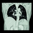 Lung cancer ( CT scan of chest and abdomen : show right lung cancer ) ( Coronal plane ) — Stock Photo #72878681
