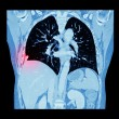 Lung cancer ( CT scan of chest and abdomen : show right lung cancer ) ( Coronal plane ) — Stock Photo #72878777