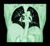 Lung cancer ( CT scan of chest and abdomen : show right lung cancer ) ( Coronal plane ) — Stock Photo