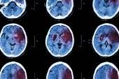 Ischemic stroke : ( CT of brain show cerebral infarction at left frontal - temporal - parietal lobe ) ( nervous system background ) — Fotografia Stock
