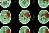 Ischemic stroke : ( CT of brain show cerebral infarction at left frontal - temporal - parietal lobe ) ( nervous system background ) — Stock Photo