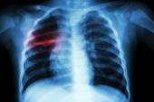Pulmonary Tuberculosis ( Chest X-ray of child : show patchy infiltration at right middle lung ) — Stock Photo
