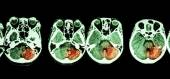 Stroke  ( CT scan of brain and base of skull and Stroke ) — Stock Photo
