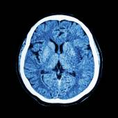CT scan of brain : show normal human 's brain ( CAT scan ) — Stock Photo