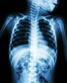 Chest X-ray of child show neck , thorax , shoulder , arm , abdomen — Stock Photo