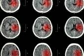 CT scan of brain with red area ( Imaging for hemorrhagic stroke or Ischemic stroke ( infarction ) concept ) — Stock Photo