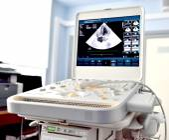 Ultrasound machine — Stock Photo