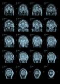 MRI Head Scan Back view — Stock Photo