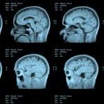 MRI Head Scan — Stock Photo