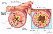 Bronchial asthma — Stock Vector