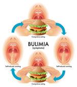 Bulimia — Stock Vector
