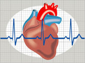 Cardiac arrhythmia — Stock Vector