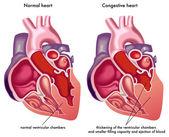 Congestive heart. — Stock Vector