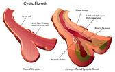 Cystic Fibrosis — Stock Vector