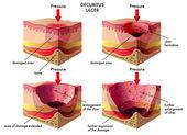 Decubitus ulcer — Stock Vector