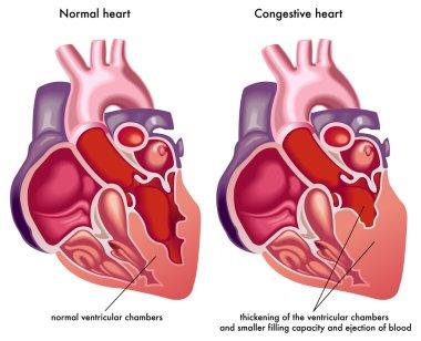 Congestive heart.
