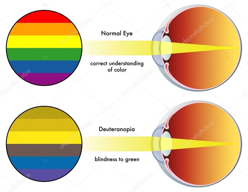 Deuteranopia Color Blindness Deuteranopia Vision