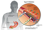 Types of Diabetes. — Stock Vector