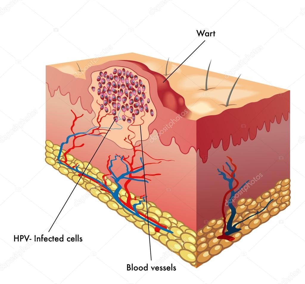 Wart & Mole Vanish | Wart, Mole, Skin Tag & Syringoma