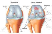 Human Arthrosis of knee — Stock Vector