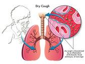 Human Dry Cough — Stockvektor
