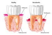 Detailed human Periodontitis — Stock Vector